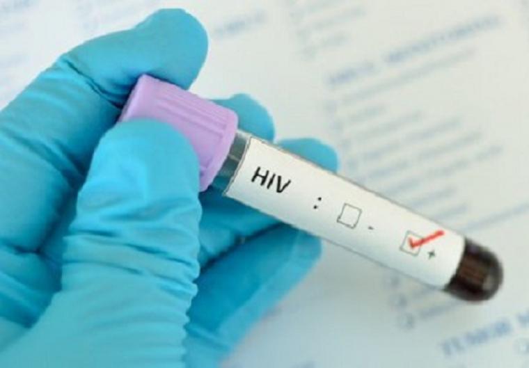 Berganti-ganti Pasangan Seks, Apakah Otomatis Tertular HIV?
