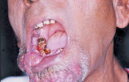 Gambar Penyakit pada Kemasan Rokok Diniliai Tidak Efektif, Pemerintah Gagal?
