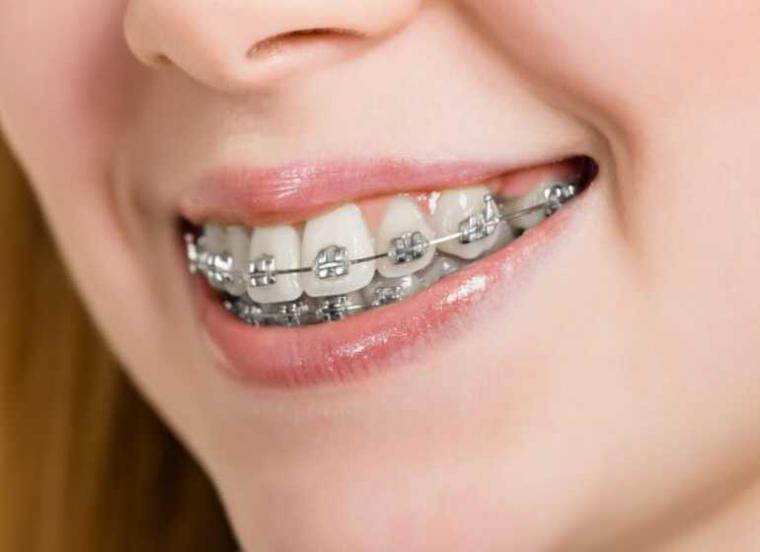 Cara Merapikan Gigi Tonggos Mudah dan Murah