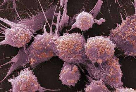 Kanker Momok yang Menakutkan
