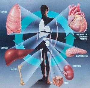 Transplantasi Bisa Menghantam Nyawamu!