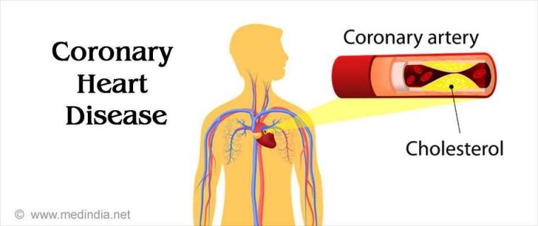 Cara Melakukan Pertolongan Awal Pada Penyakit Jantung Koroner dan Kadar Kolesterol Tinggi