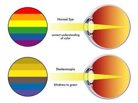 Refraksi Optisi Dalam Penanganan Penyakit Buta Warna
