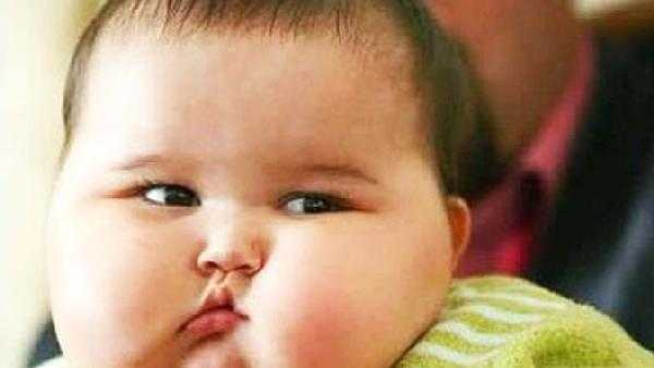 Muncul Warna Hitam pada Lipatan Kulit Anak, Tanda Obesitas?