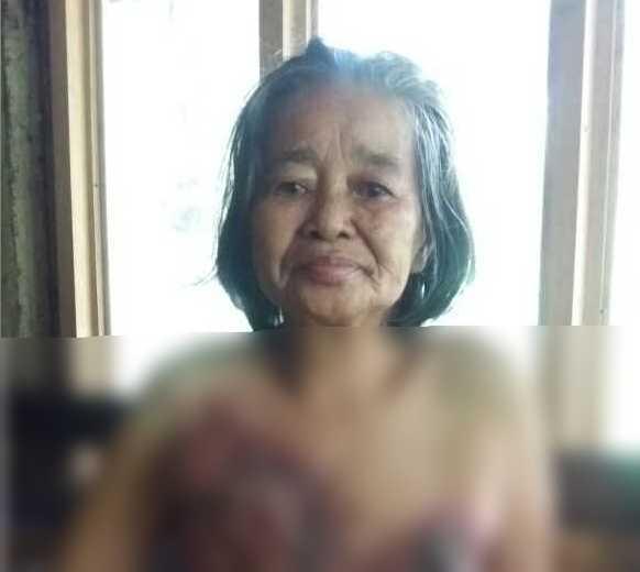 3 Tahun Lawan Kanker, Ibu Rokayah Tidak Mendapatkan Pengobatan Layak