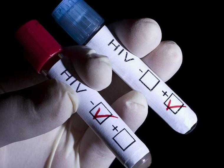 Kasihan Istri Harus Merasakan Infeksi HIV Akibat Ulah Suami