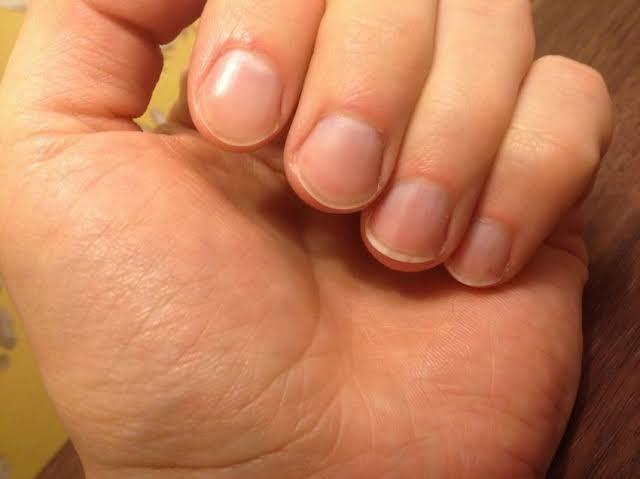 Cara Menjaga Kuku Tangan dan Kaki