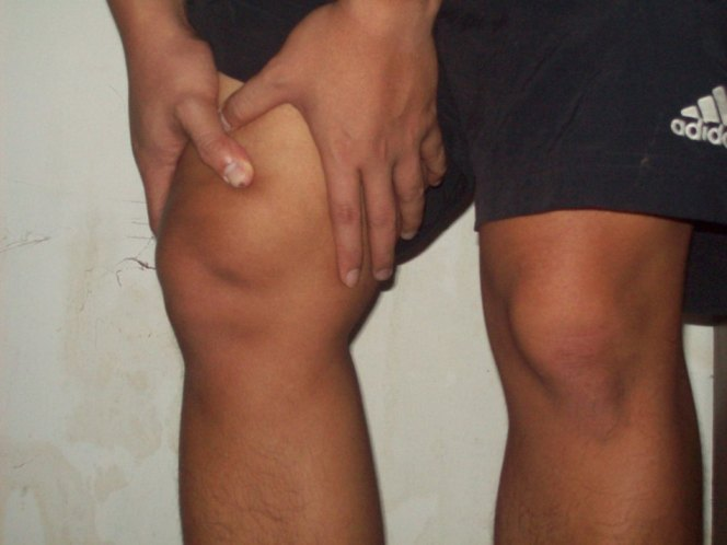Mengobati sakit sendi pada lutut