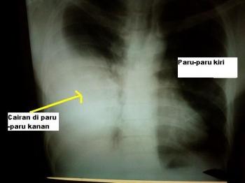 Asap Rokok Papa Berubah Jadi Air Kuning Itu Ya Om Dokter