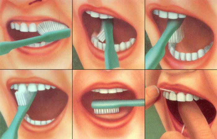 Gerakan Sikat Gigi yang benar